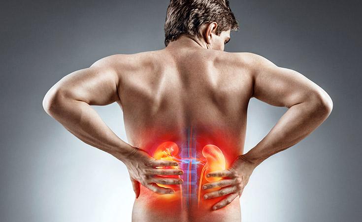 Pedra nos rins: O que é e como evitar?