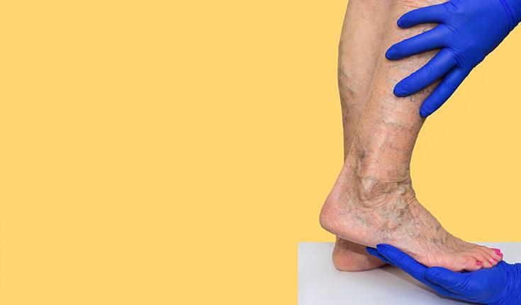 Qual a função da cirurgia vascular?