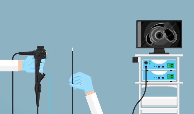 A endoscopia também pode ser usada como tratamento
